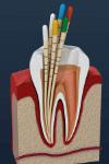 endodontia cones
