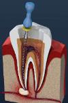 endodontia limagem