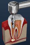 endodontia preparo canais