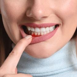 Periodontia em Santos - Solução Oral Odontologia