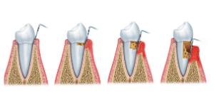 Periodontia em Santos - Tártaro - Solução Oral odontologia