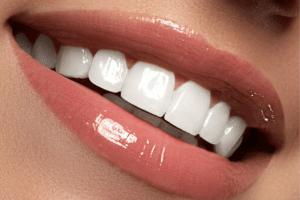 Sorriso Lente de Contato - Solução Oral Odontologia