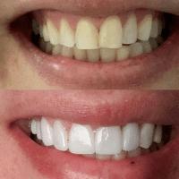 Antes e depois lente de contato - Solução Oral Odontologia