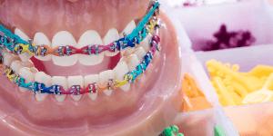 cores de aparelho ortodontia
