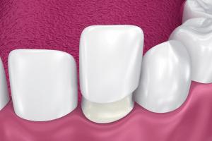 Faceta cimentação - Solução Oral Odontologia