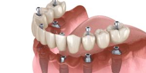 implante dentário - implantes múltiplos - Solução Oral Odontologia