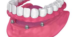 implante dentário - protocolo fixo - Solução Oral Odontologia