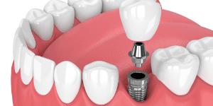 implante dentário - unitário - Solução Oral Odontologia